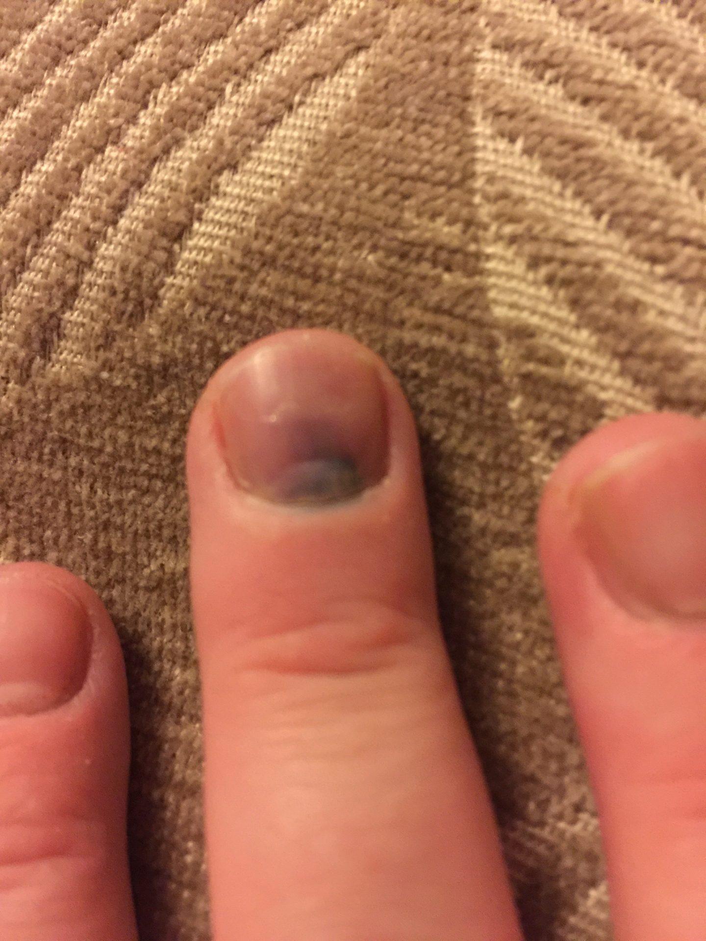 I Have Smashed My Essential 'Middle Finger'.